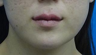 東京中央美容外科 郡山院(郡山下肢静脈瘤クリニック)の唇のヒアルロン酸注射の症例写真(アフター)
