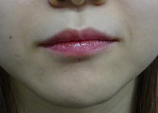 東京中央美容外科 郡山院(郡山下肢静脈瘤クリニック)の唇のヒアルロン酸注射の症例写真(ビフォー)