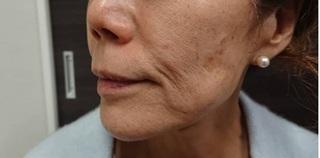 東京皮膚科・形成外科 (銀座いけだクリニック)のフェイスタイトの症例写真(ビフォー)