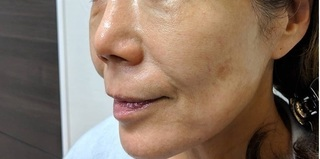 東京皮膚科・形成外科 (銀座いけだクリニック)のフェイスタイトの症例写真(アフター)