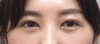 東京皮膚科・形成外科 (銀座いけだクリニック)の切らないグラマラスの症例写真(アフター)