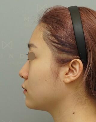 マインド整形外科の頬骨縮小+Vライン彫刻術/鼻先整形の症例写真(ビフォー)