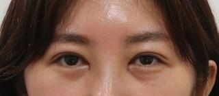 東京皮膚科・形成外科 (銀座いけだクリニック)の切らないグラマラスの症例写真(ビフォー)