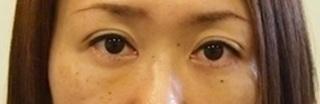 東京皮膚科・形成外科 (銀座いけだクリニック)の黒目整形(二重まぶた+眼瞼下垂(切開なし))の症例写真(アフター)