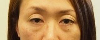 東京皮膚科・形成外科 (銀座いけだクリニック)の黒目整形(二重まぶた+眼瞼下垂(切開なし))の症例写真(ビフォー)