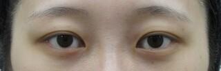 十仁美容整形の眼瞼下垂、目頭切開の症例写真(ビフォー)