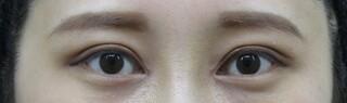 十仁美容整形の眼瞼下垂、目頭切開の症例写真(アフター)