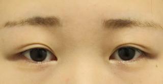 東京イセアクリニック銀座院の埋没法ダブルの症例写真(アフター)