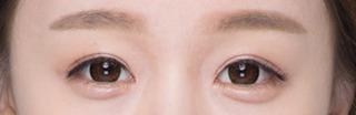 ITEM美容(整形)外科の目の再手術の症例写真(アフター)