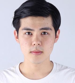バノバギ整形外科の【男性整形】輪郭3点(頬骨、前顎、エラ)の症例写真(ビフォー)