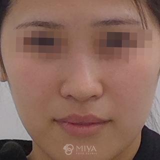 MIYAフェイスクリニックの鼻プロテーゼ・鼻尖縮小の症例写真(ビフォー)