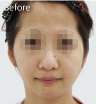 MIYAフェイスクリニックのフェイスリフト(トータル)+脂肪吸引(アゴ)の症例写真(ビフォー)