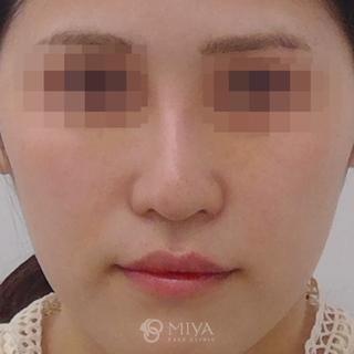 MIYAフェイスクリニックの鼻プロテーゼ・鼻尖縮小の症例写真(アフター)