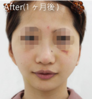 MIYAフェイスクリニックのフェイスリフト(トータル)+脂肪吸引(アゴ)の症例写真(アフター)