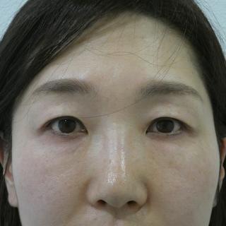 id美容クリニック銀座院の目頭切開・目尻切開・上眼瞼手術の症例写真(ビフォー)