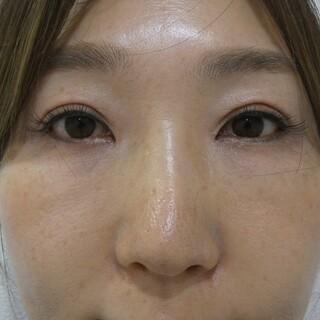 id美容クリニック銀座院の目頭切開・目尻切開・上眼瞼手術の症例写真(アフター)