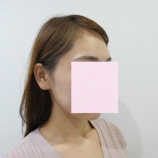 id美容クリニック銀座院の額脂肪注入の症例写真(ビフォー)