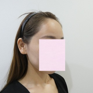id美容クリニック銀座院の額脂肪注入の症例写真(アフター)