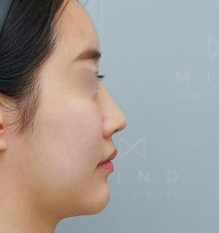マインド整形外科の鼻再手術の症例写真(ビフォー)