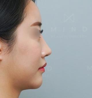 マインド整形外科の鼻再手術の症例写真(アフター)