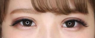 大阪TAクリニックの二重全切開+目頭切開⠀ ⠀の症例写真(アフター)