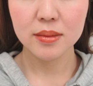 大阪TAクリニックのツヤ肌コラーゲンリフト+バッカルファット除去+メーラーファット除去の症例写真(ビフォー)