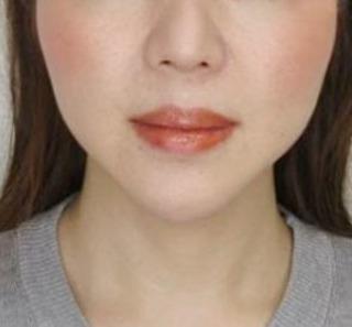 大阪TAクリニックのツヤ肌コラーゲンリフト+バッカルファット除去+メーラーファット除去の症例写真(アフター)