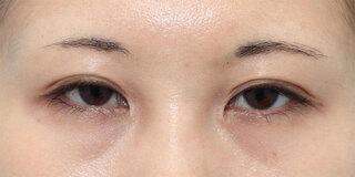 ヴェリテクリニック銀座院の眼瞼下垂(挙筋短縮術)の症例写真(ビフォー)