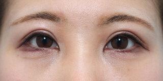 ヴェリテクリニック銀座院の眼瞼下垂(挙筋短縮術)の症例写真(アフター)