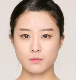 ITEM美容(整形)外科の鼻整形の症例写真(ビフォー)