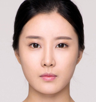 ITEM美容(整形)外科の鼻整形の症例写真(アフター)