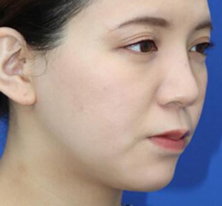 オザキクリニックLUXE新宿の顔の脂肪吸引(頬、あご下、バッカルファット)の症例写真(ビフォー)