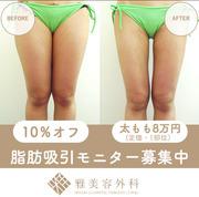 大阪雅美容外科のモニター画像