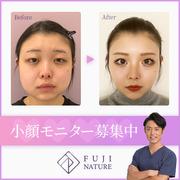 藤・ナチュレ美容クリニックのモニター画像
